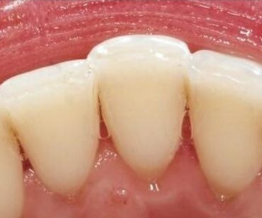 Cosmetic Dentistry after Teeth Whitening Treatment