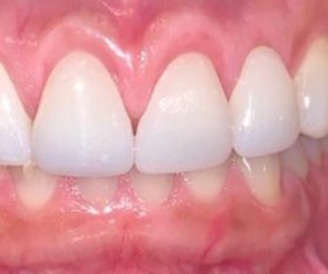 clean and white teeth after cosmetic dentistry