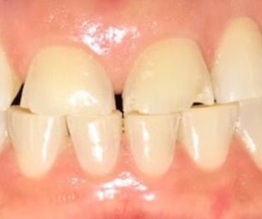 discolored teeth before cosmetic dentistry
