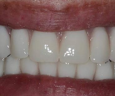 white teeth after cosmetic dentistry